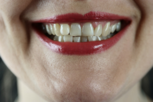 A woman with healthy teeth